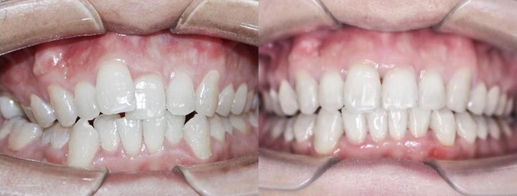 Khách hàng niềng răng trong suốt Invisalign sau 6 tháng tại Nha Khoa Flora