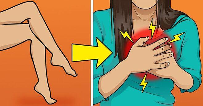 Tư thế ngồi vắt chéo chân có thể gây biến chứng sức khoẻ nguy hiểm ở người bị huyết áp cao.