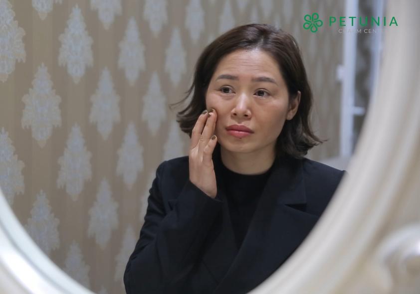 Chị Nhung cảm thấy thiếu tự tin vi làn da thiếu sức sống mỗi khi soi gương.