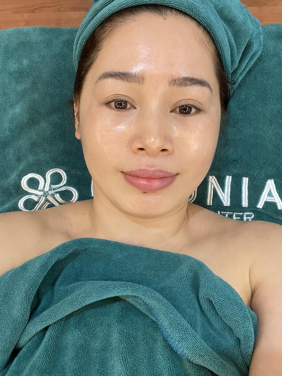 Làn da chị Nhung mịn màng, ít nếp nhăn hơn sau khi trải nghiệp công nghệ trẻ hóa da sinh học Double Collagen.