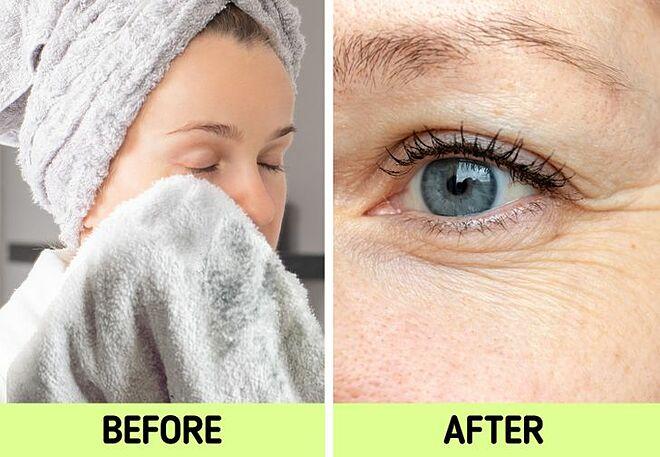 Lau mặt bằng khăn bông có thể gây ra các nếp nhăn.
