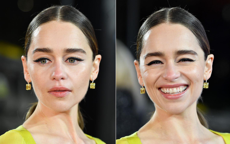Emilia từng được chueyen viên chăm sóc da khuyên tiêm filler để lấy lại nhan sắc thời trẻ khi mới 28 tuổi.