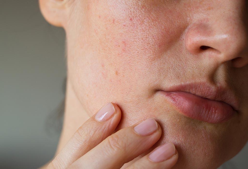 Lỗ chân lông to, sần sùi là vấn đề rất khó cải thiện.