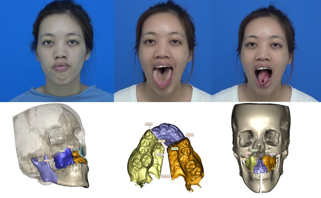 Trần Thị Thủy gặp tình trạng lưỡi to dẫn tới khớp cắn hở, cười hở lợi, vòm miệng hẹp.