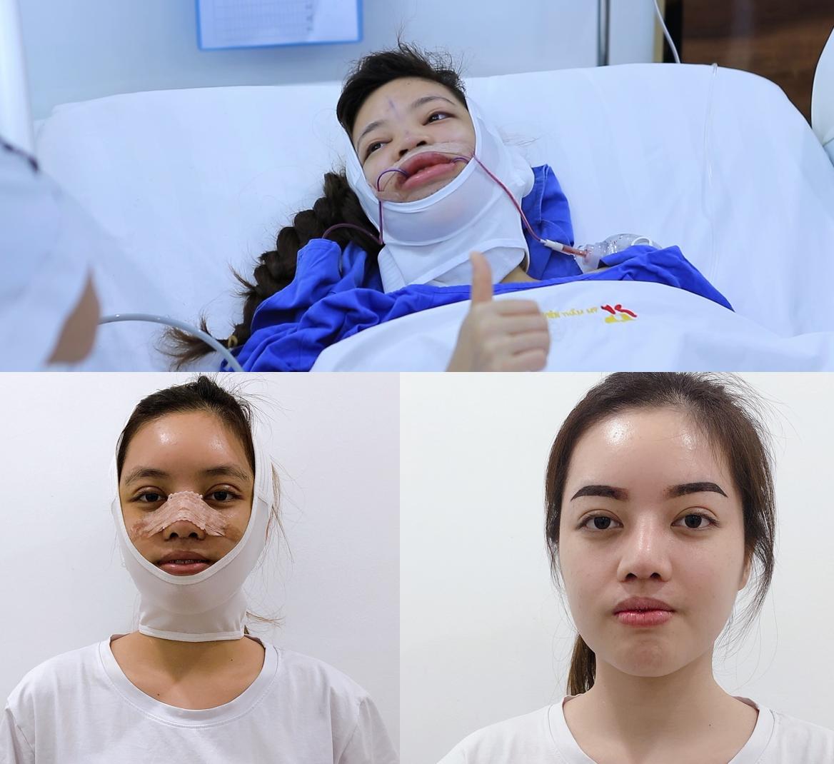Cuộc phẫu thuật cho nữ điều dưỡng phức tạp, đòi hỏi các bác sĩ cũng như bản thân cô phải nỗ lực rất lớn.