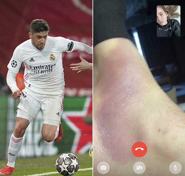 Sao trẻ Real bị đau chân vẫn chơi trọn 90 phút