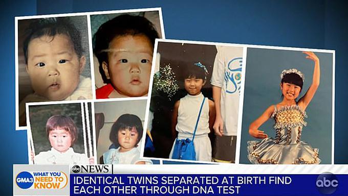 Những hình ảnh ngày bé của Emily và Molly có rất nhiều nét tương đồng. Ảnh: GMA.