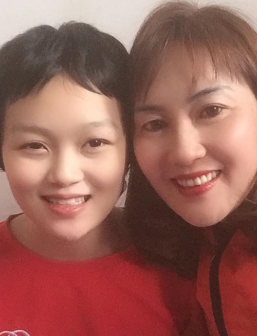 Từ khi học cấp 1, Linh đã có triệu chứng đau đầu, nhưng không nặng.