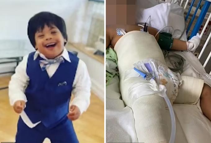 Jose trước khi bị ngã (trái) và khi nằm viện điều trị gãy xương đùi sau cú ngã (phải). Ảnh gia đình cung cấp cho NBC.