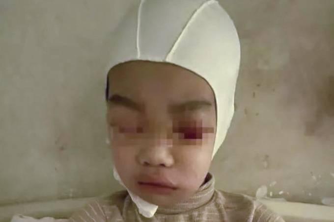 Bé Yuan, học sinh lớp 3, hoảng sợ sau khi bị thầy giáo bạo hành và không chịu trở lại trường học. Ảnh: SCMP.
