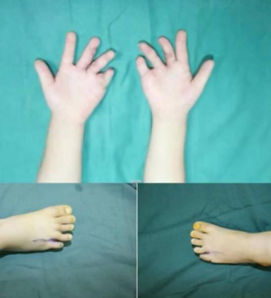 Tay chân Ting Ting đã được cắt bỏ 7 ngón thừa. Ảnh: Douyin.