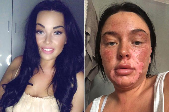Cô gái bỏng mặt vì học cách chần trứng trên Tiktok - 1