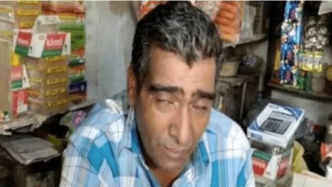 Pukharam hầu như lúc nào cũng cảm thấy mệt mỏi dù mỗi tháng ngủ 20 đến 25 một ngày. Ảnh: