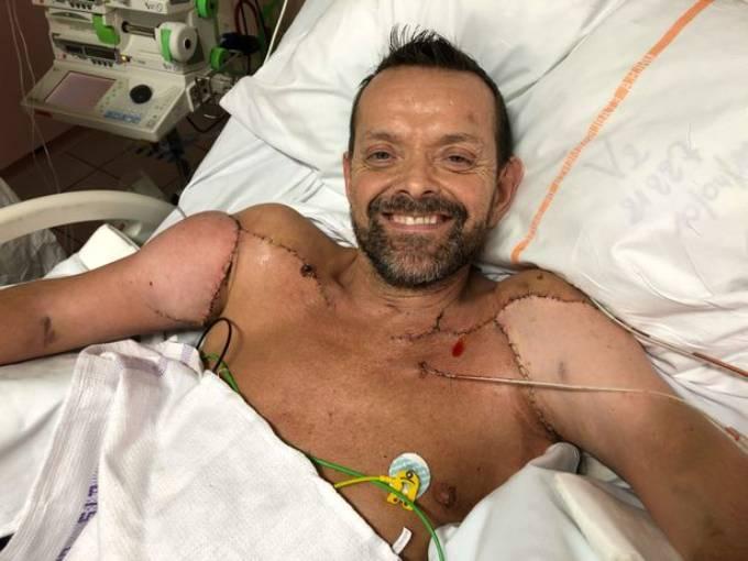 Felix trên giường bệnh không lâu sau ca phẫu thuật cấy ghép hồi tháng 1. SWNS.