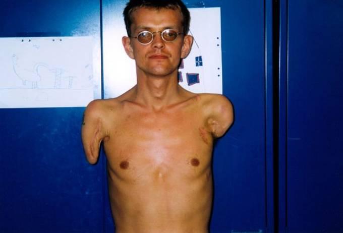 Felix sống với đôi tay cụt trong 23 năm sau tai nạn điện giật. Ảnh: SWNS.