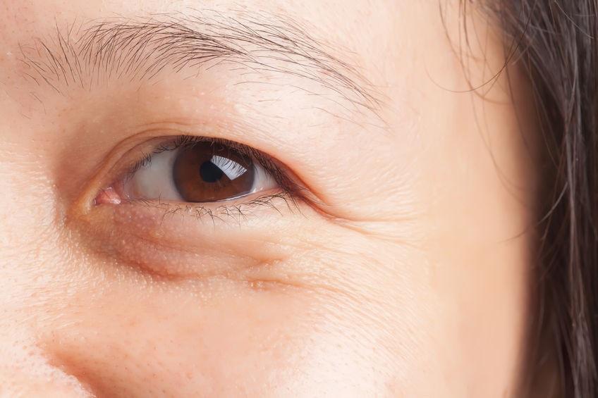 Hàm lượng cortisol cao khiến da mất đi độ đàn hồi, dễ xuất hiện nếp nhăn.