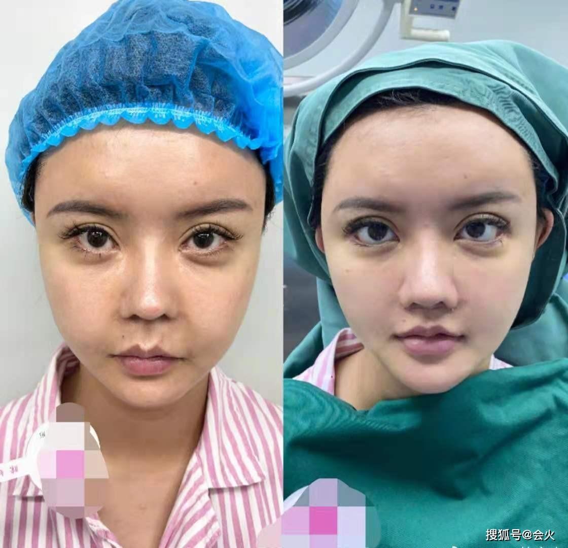 Khuôn mặt Hàn An Nhiễm qua các lần chỉnh sửa.