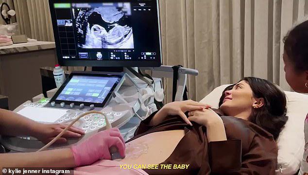 Kylie Jenner xúc động khi nhìn thấy hình ảnh em bé trên màn hình máy siêu âm và nghe nhịp tim của con. Bé Stormi háo hức đứng bên ngắm em bé.