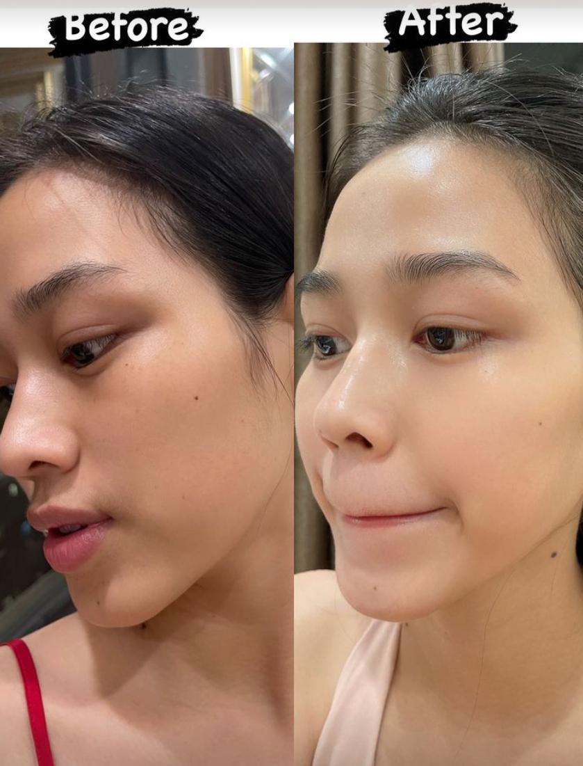 2 hoạt chất giúp da Đỗ Thị Hà căng mịn sau một tháng