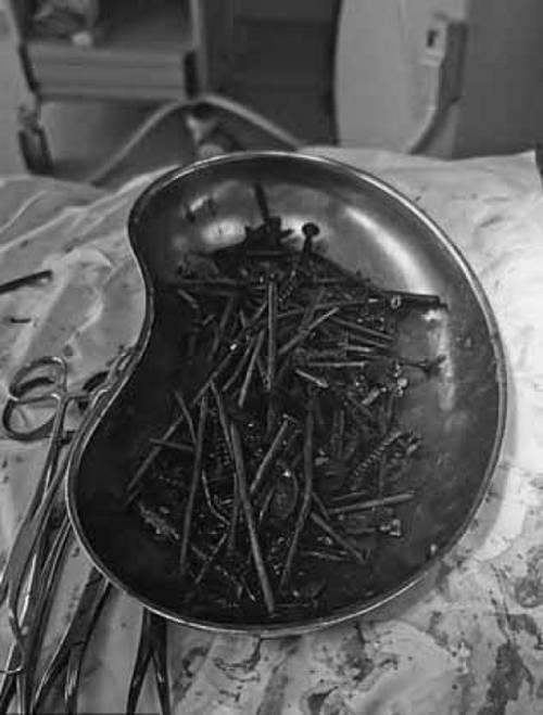 Số lượng đinh, ốc vít được lấy ra khỏi ổ bụng người đàn ông Lithuania. Ảnh: Bệnh viện Đại học Klaipeda