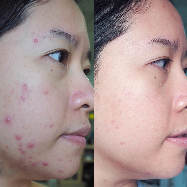 Da mặt được cải thiện tình trạng mụn sau khi dùng kem Derladie của một bạn nữ. Ảnh nhân vật cung cấp.