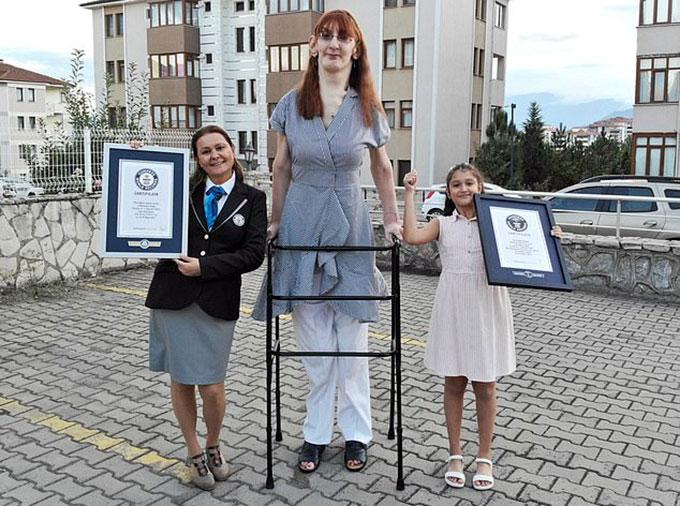 Rumeysa Gelgi được tặng giấy chứng nhận Guinness cho kỷ lục người phụ nữ cao nhất thế giới còn sống. Ảnh: PA