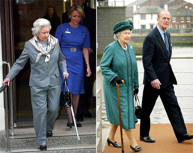 Ảnh trái: Nữ hoàng rời Bệnh viện King Edward VII ở London vào ngày 14/1/2003, sau cuộc phẫu thuật đầu gối. Ảnh phải: Nữ hoàng dùng gậy khi cùng Hoàng thân Philip đến thăm Belfast vào ngày 26/2/2003.